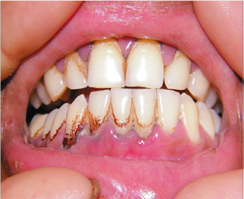 Gums in lead poisoning